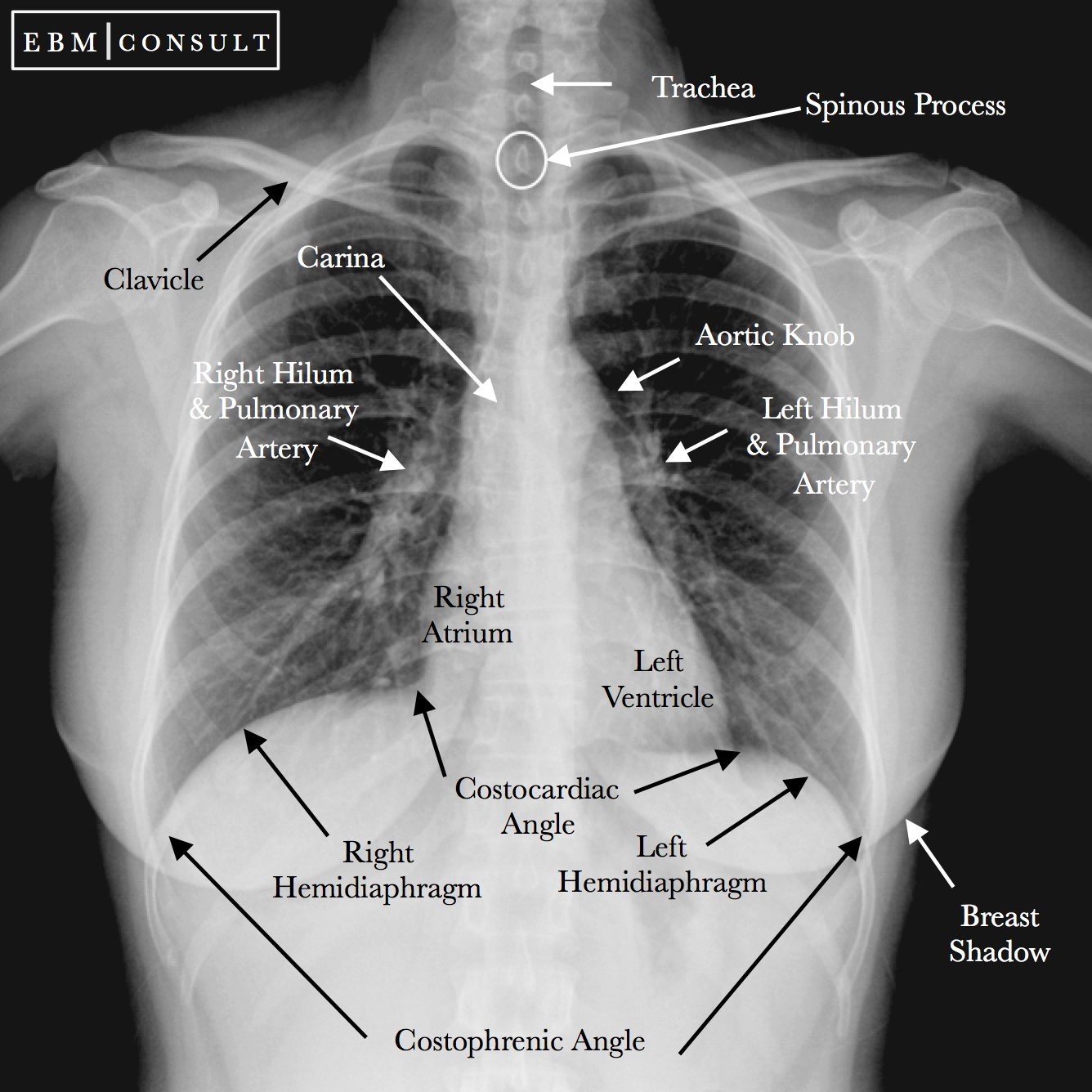 Radiology Chest Xray Normal