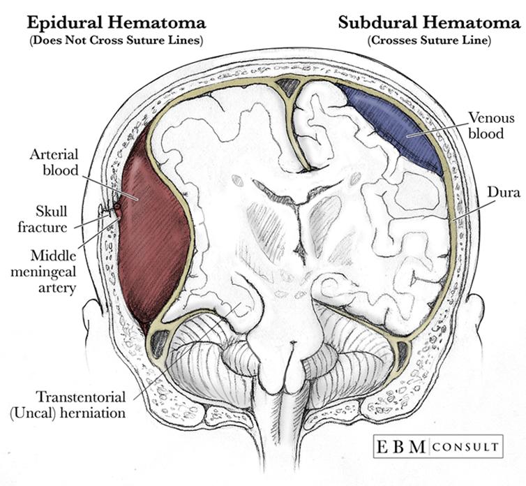 Anatomy Epidural Vs Subdural Hematoma Image
