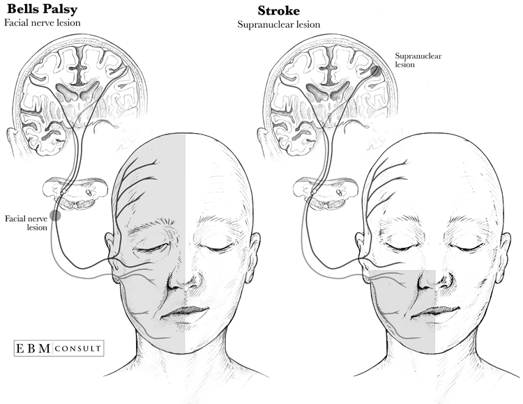 Your place Left lower motor neuron facial weakness remarkable, rather