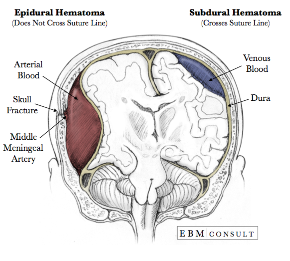 dating subdural hematoma Sex & dating style travel marketplace we hadn't considered a hematoma chronic subdural hematomas are on the rise.