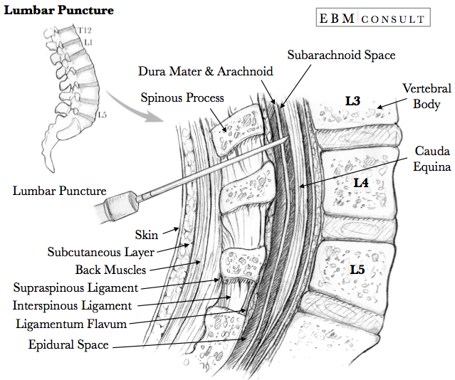 Lumbar Puncture Anatomy Needle Placement Image