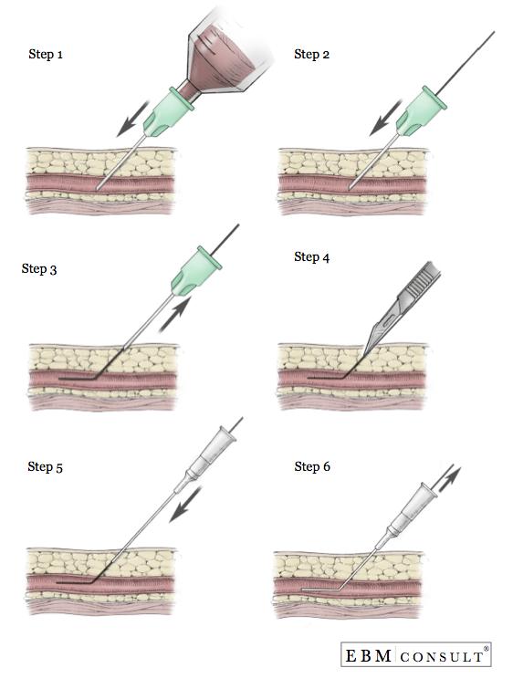 The Arterial Line : Seldinger technique for central intravenous iv line