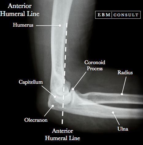 Anterior Humeral Line