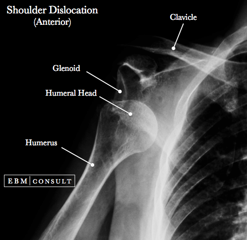 Shoulder Dislocation Image