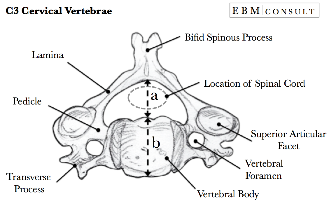 sac radiographic measurement for spinal stenosis