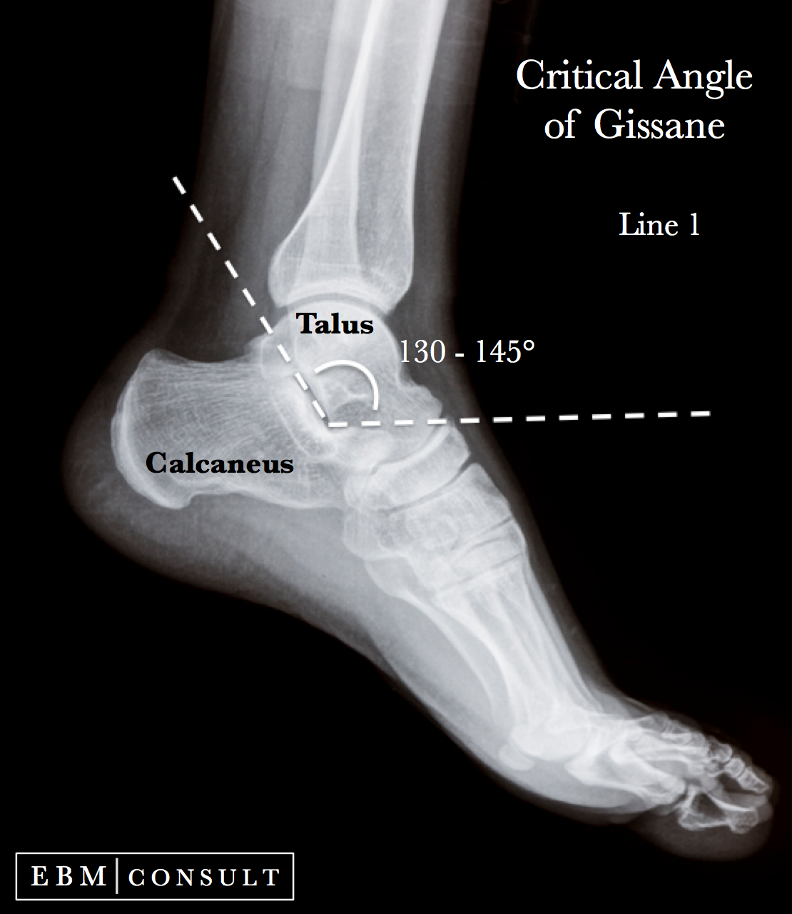Anatomy Critical Angle of Gissane for Calcaneus Fractures