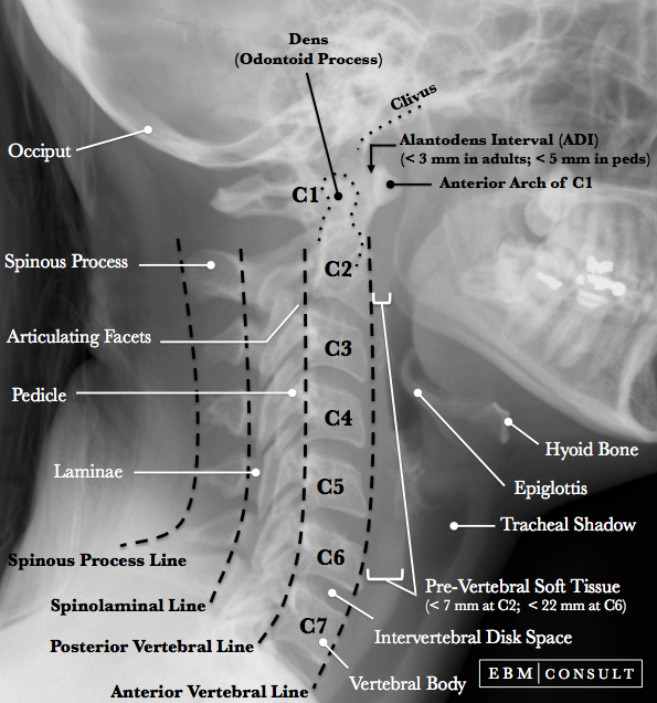 Lateral neck x ray anatomy