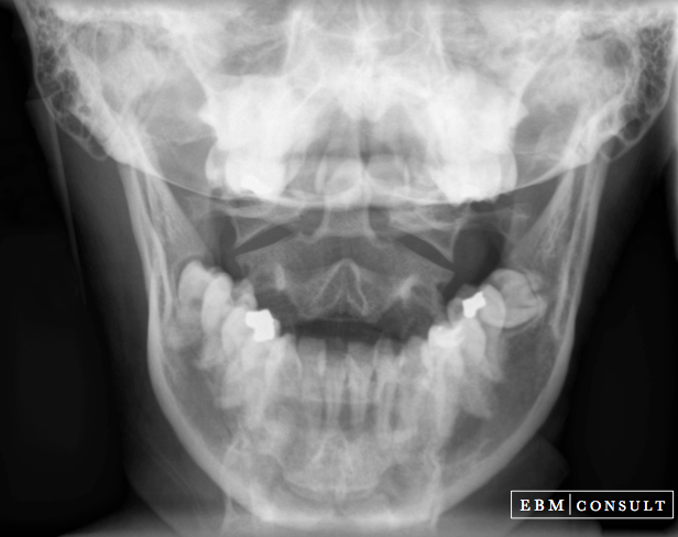 Open Mouth Odontoid Radiograph Xray View