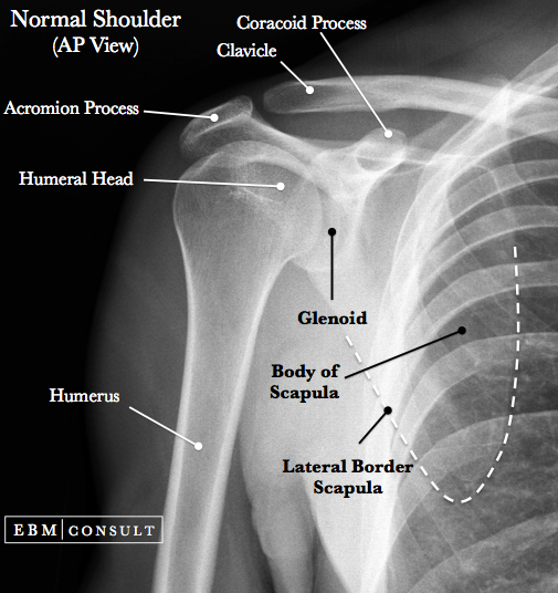 Normal Shoulder X-Ray AP View